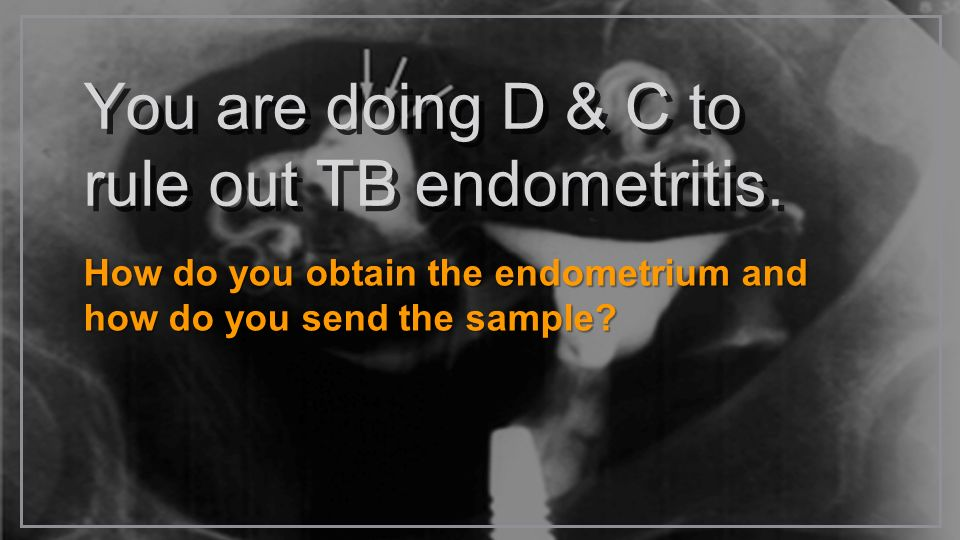 You are doing D & C to rule out TB endometritis.