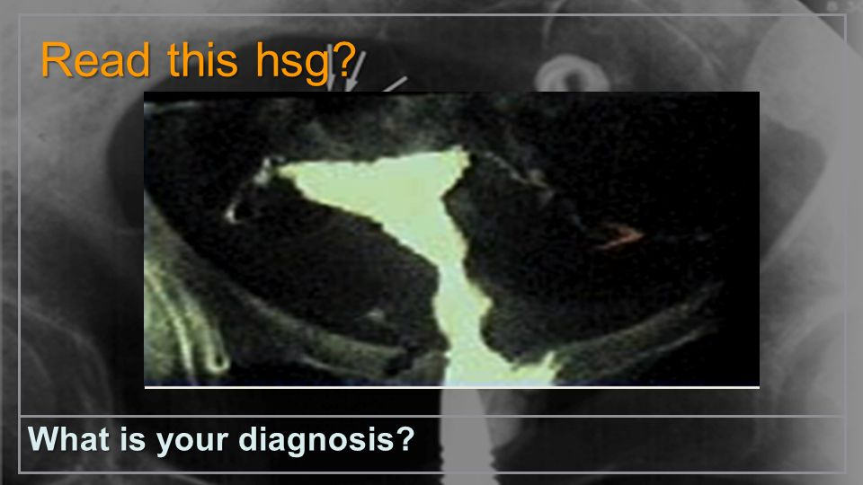 Read this hsg What is your diagnosis