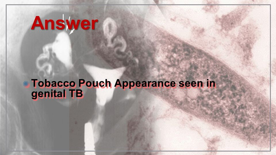Answer Tobacco Pouch Appearance seen in genital TB