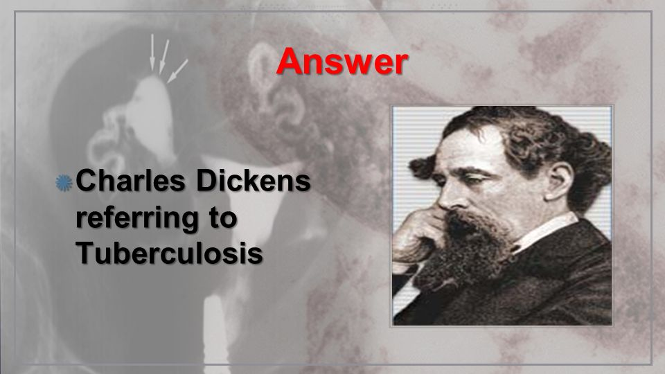 Answer Charles Dickens referring to Tuberculosis