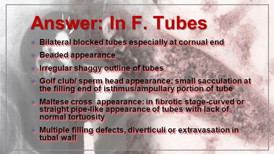 Answer: In F. Tubes Bilateral blocked tubes especially at cornual end