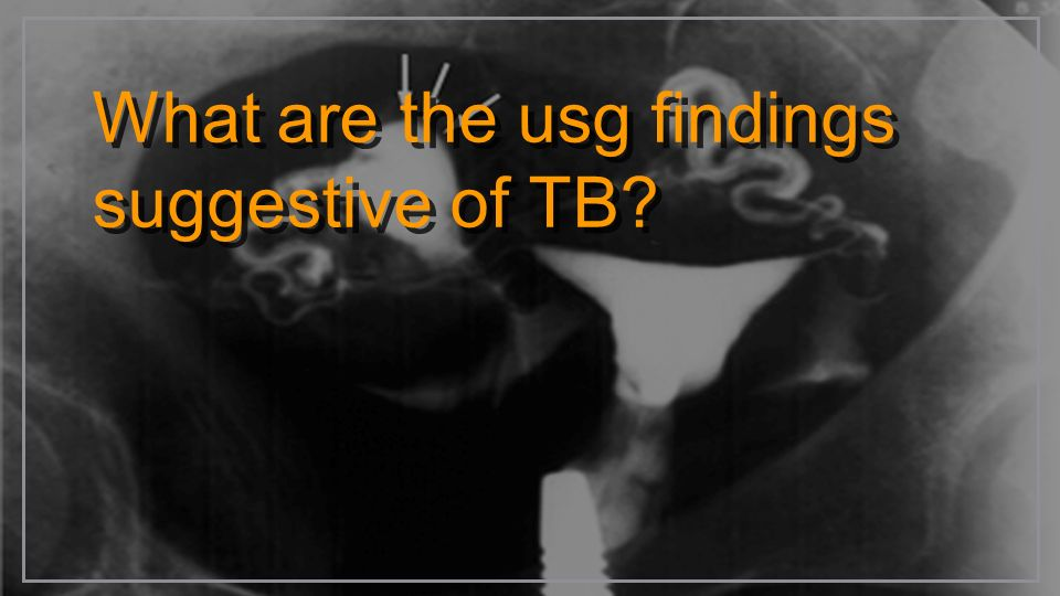 What are the usg findings suggestive of TB