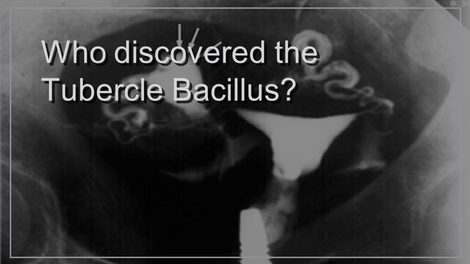 Who discovered the Tubercle Bacillus
