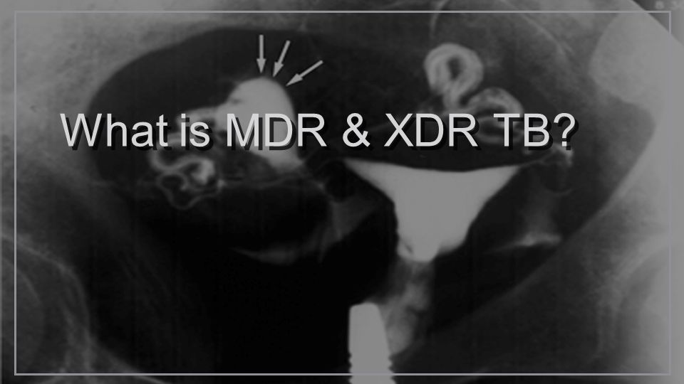 What is MDR & XDR TB