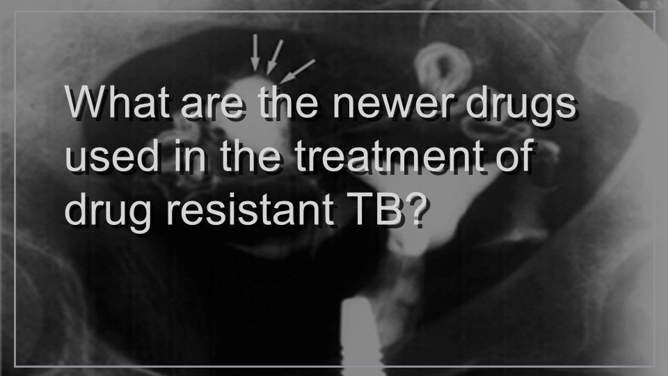 What are the newer drugs used in the treatment of drug resistant TB