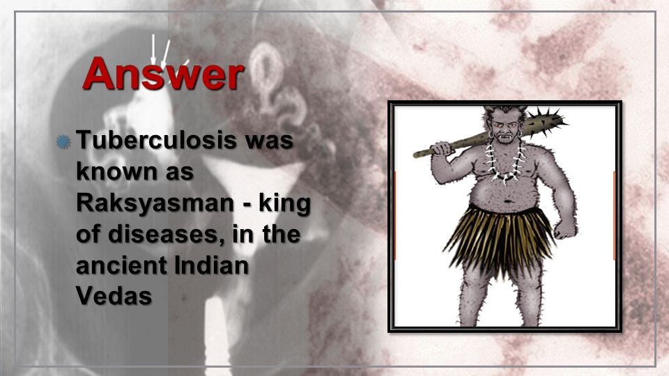 Answer Tuberculosis was known as Raksyasman - king of diseases, in the ancient Indian Vedas