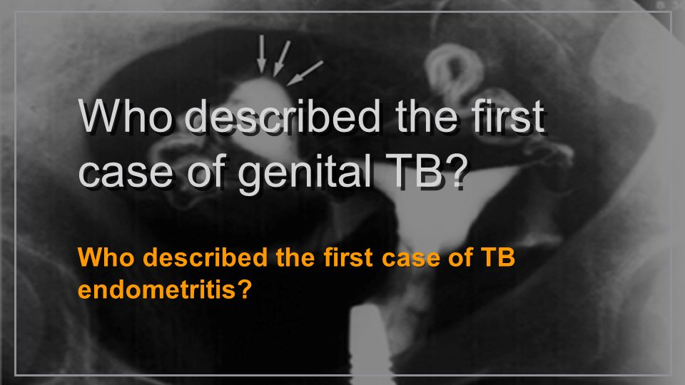 Who described the first case of genital TB