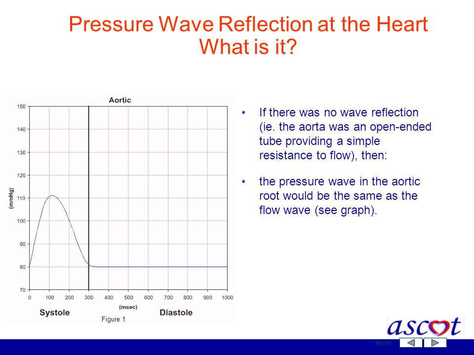 Pressure Wave Reflection at the Heart What is it