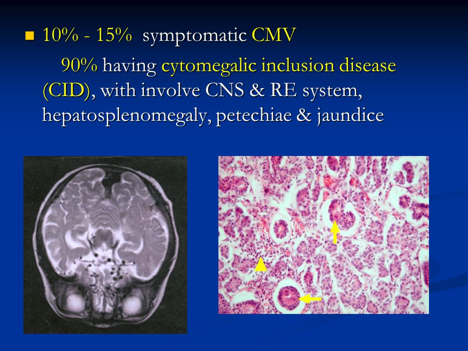 10% - 15% symptomatic CMV 90% having cytomegalic inclusion disease (CID), with involve CNS & RE system, hepatosplenomegaly, petechiae & jaundice.