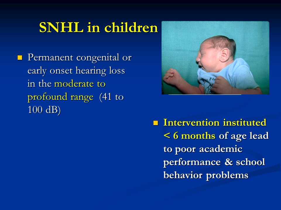 SNHL in children Permanent congenital or early onset hearing loss in the moderate to profound range (41 to 100 dB)