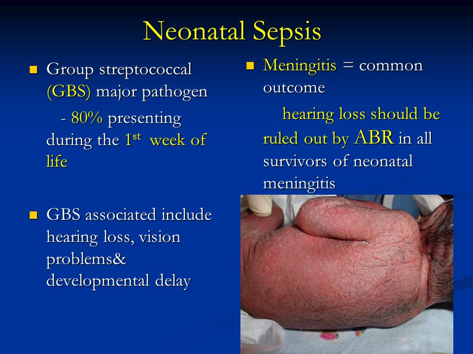 Neonatal Sepsis Meningitis = common outcome
