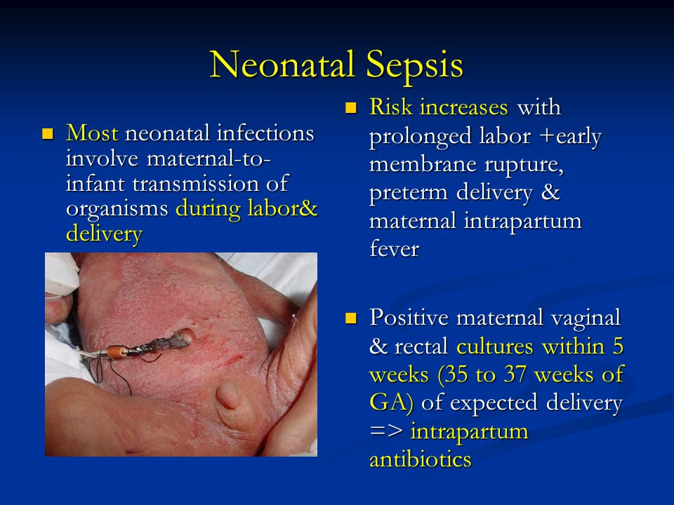 Neonatal Sepsis Risk increases with prolonged labor +early membrane rupture, preterm delivery & maternal intrapartum fever.