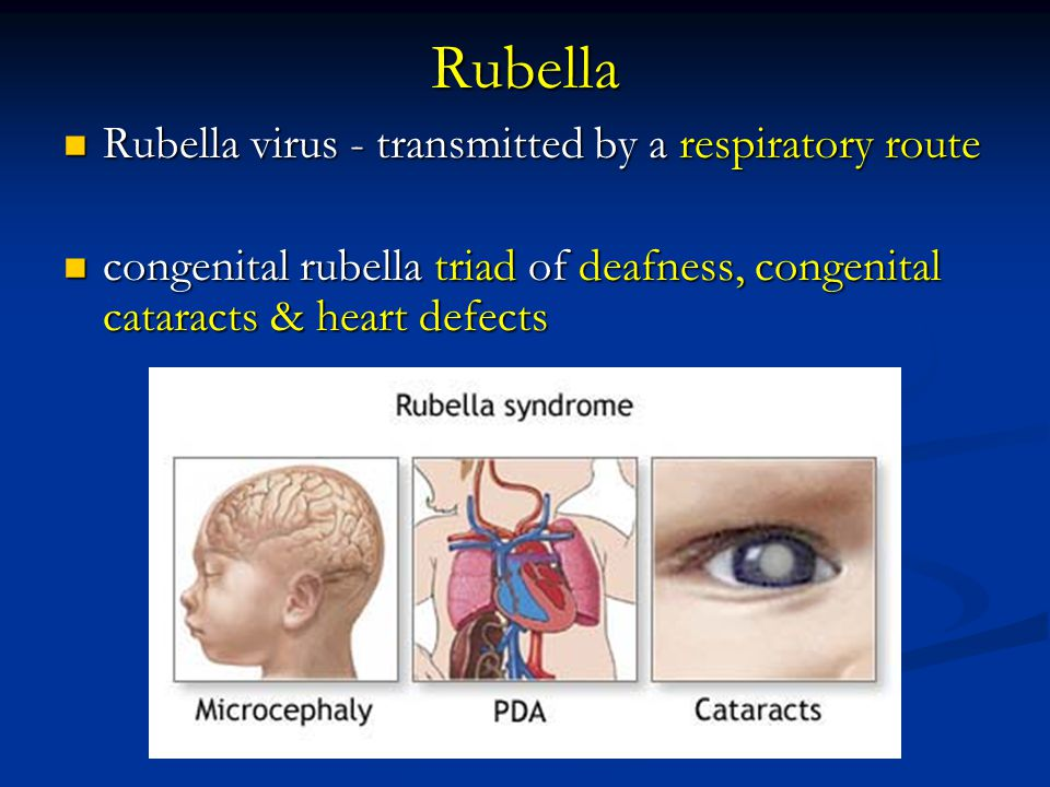 Rubella Rubella virus - transmitted by a respiratory route
