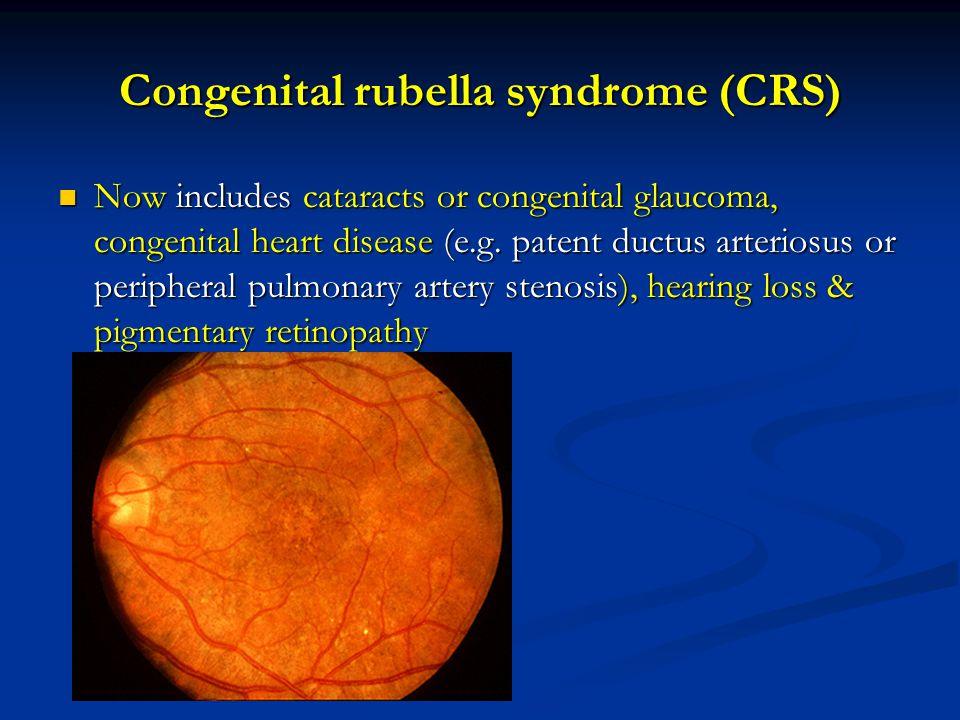Congenital rubella syndrome (CRS)
