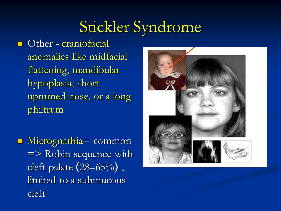Stickler Syndrome Other - craniofacial anomalies like midfacial flattening, mandibular hypoplasia, short upturned nose, or a long philtrum.