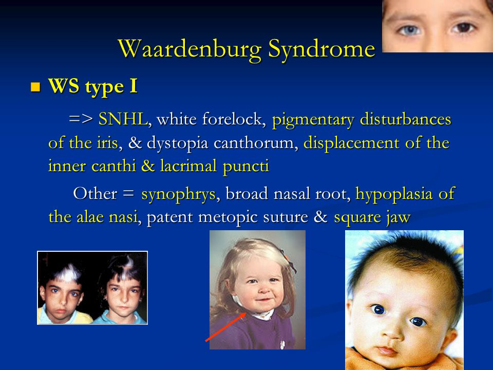 Waardenburg Syndrome WS type I