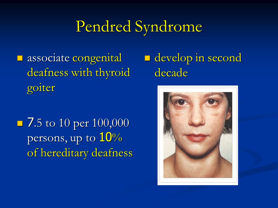 Pendred Syndrome associate congenital deafness with thyroid goiter
