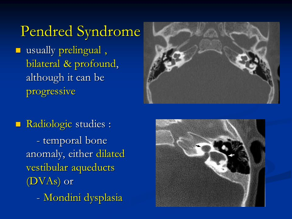 Pendred Syndrome usually prelingual , bilateral & profound, although it can be progressive. Radiologic studies :