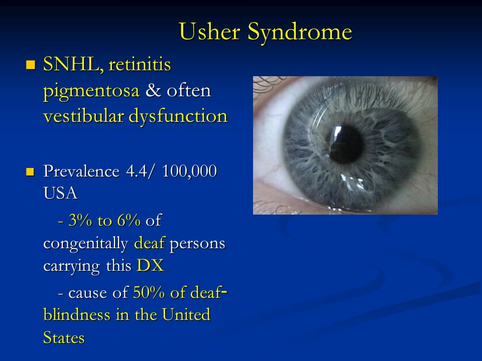 Usher Syndrome SNHL, retinitis pigmentosa & often vestibular dysfunction. Prevalence 4.4/ 100,000 USA.