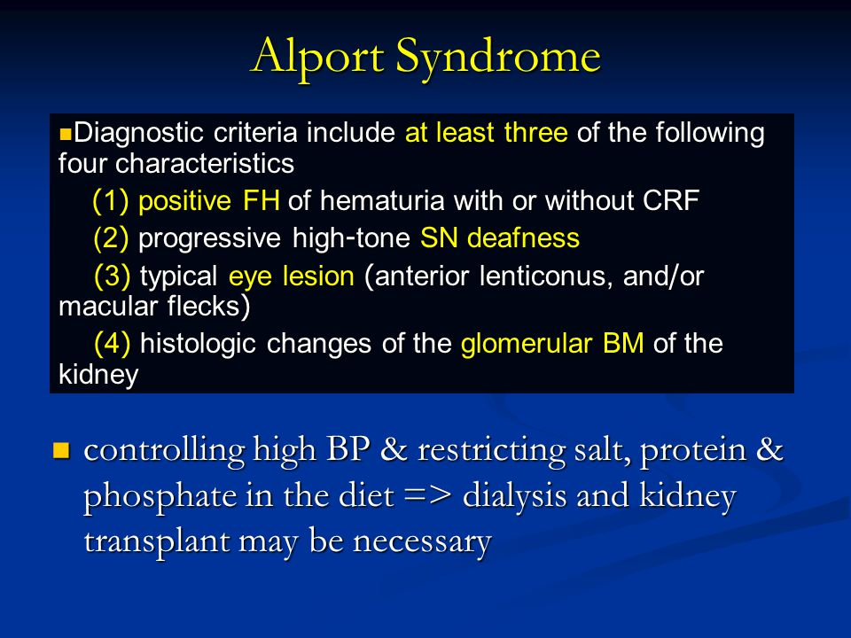 Alport Syndrome Diagnostic criteria include at least three of the following four characteristics. (1) positive FH of hematuria with or without CRF.