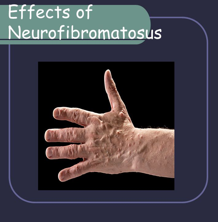 Effects of Neurofibromatosus