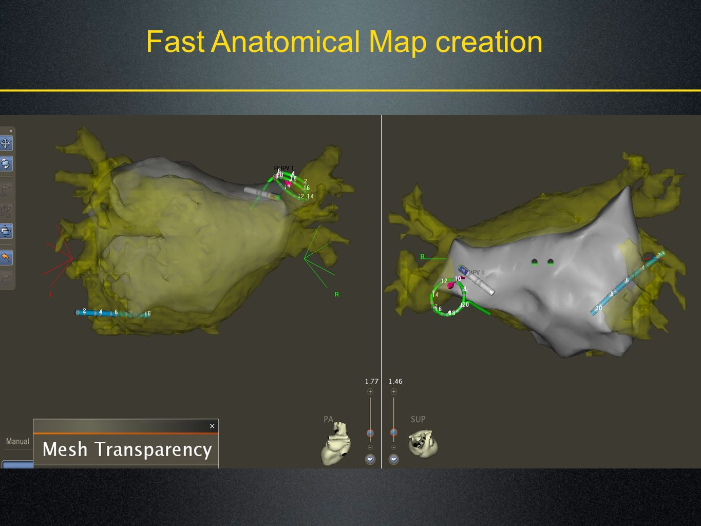 Fast Anatomical Map creation