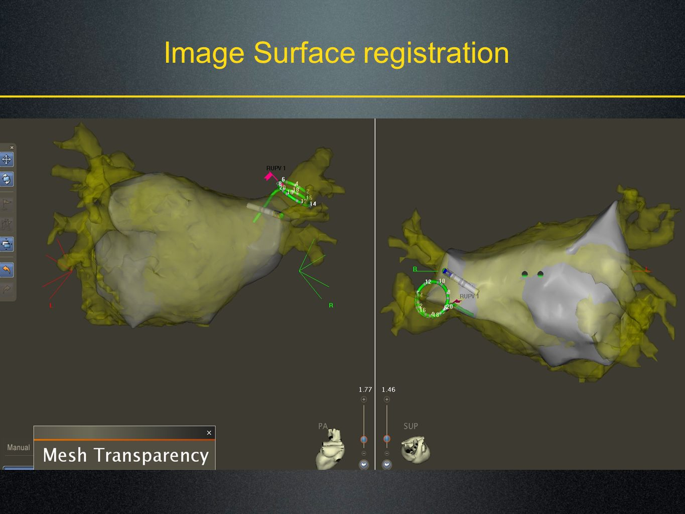 Image Surface registration