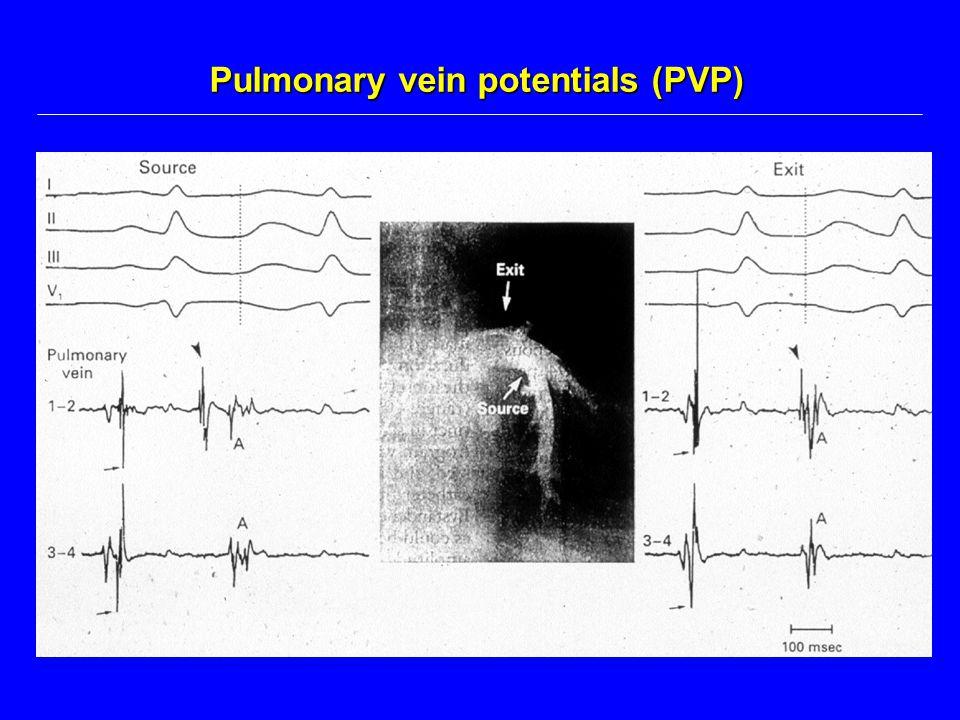 Pulmonary vein potentials (PVP)