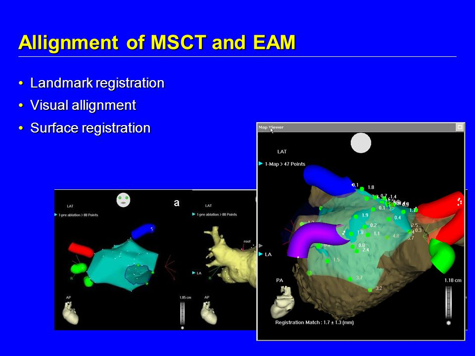 Allignment of MSCT and EAM
