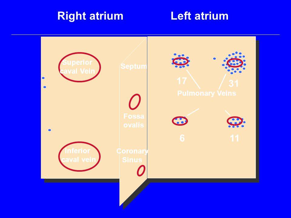 Right atrium Left atrium