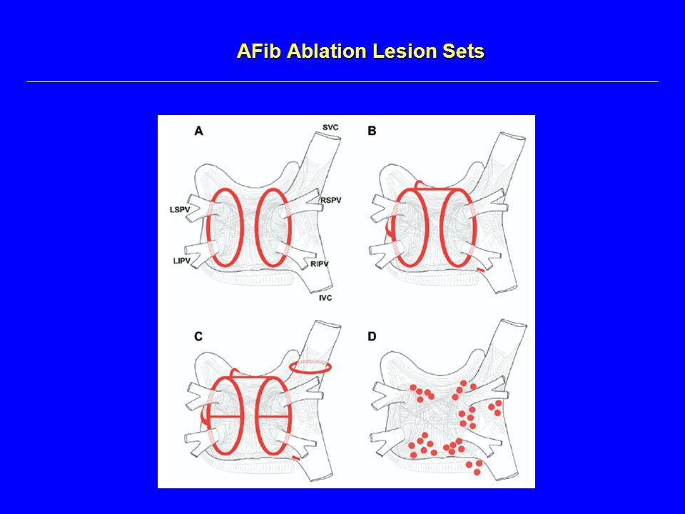AFib Ablation Lesion Sets