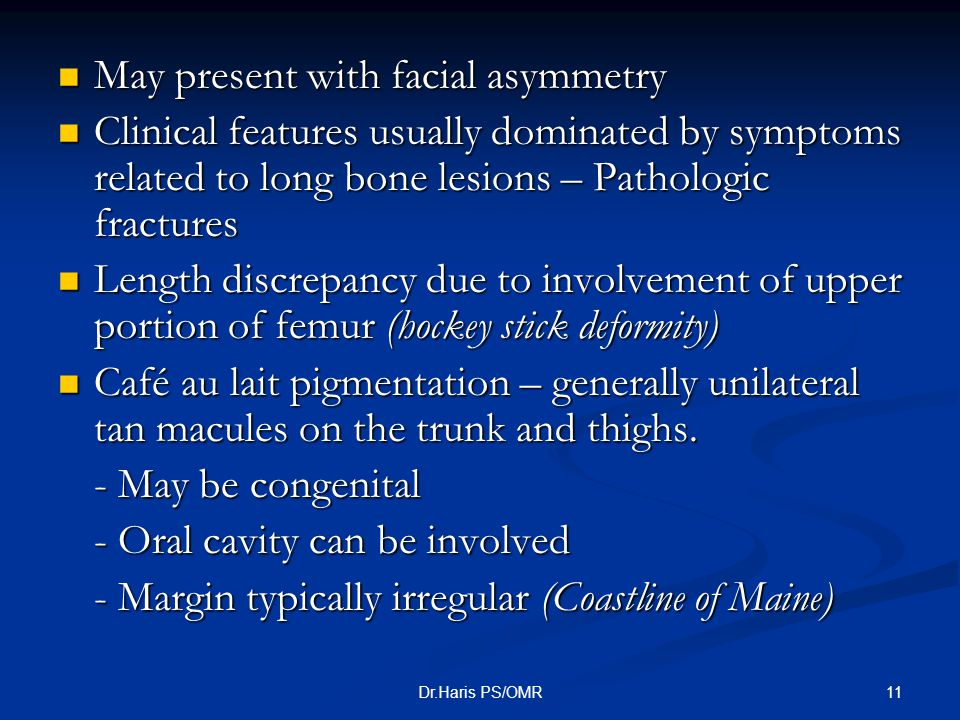 May present with facial asymmetry