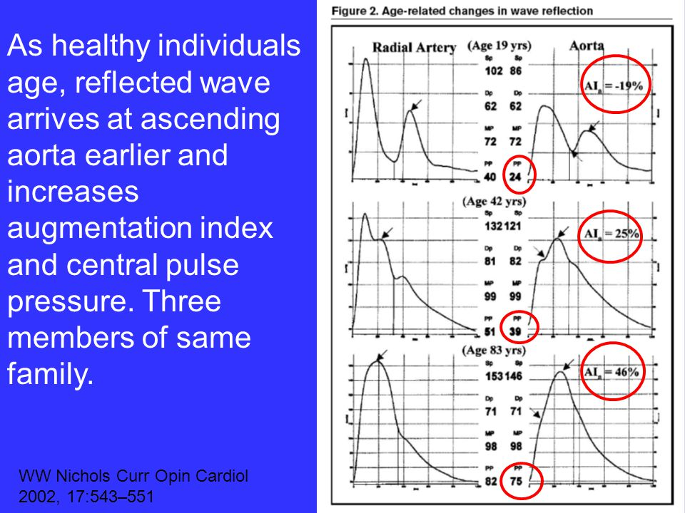 As healthy individuals age, reflected wave arrives at ascending aorta earlier and increases augmentation index and central pulse pressure. Three members of same family.