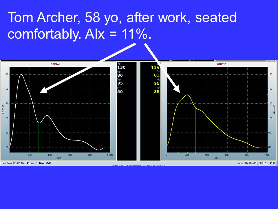 Tom Archer, 58 yo, after work, seated comfortably. AIx = 11%.