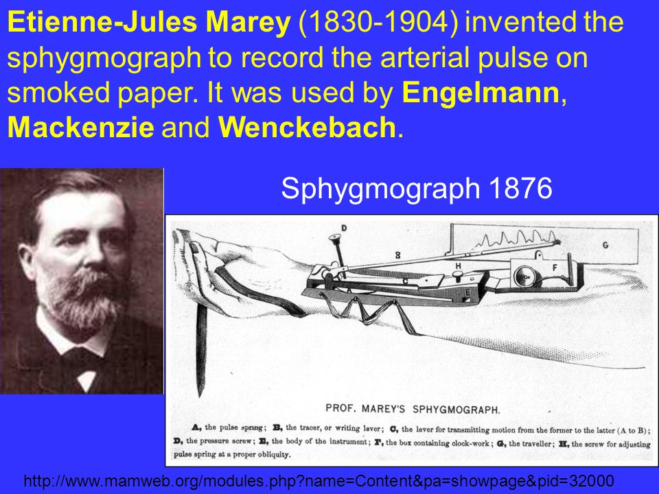 Etienne-Jules Marey (1830-1904) invented the sphygmograph to record the arterial pulse on smoked paper. It was used by Engelmann, Mackenzie and Wenckebach.