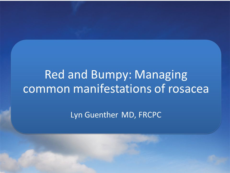 Red and Bumpy: Managing common manifestations of rosacea