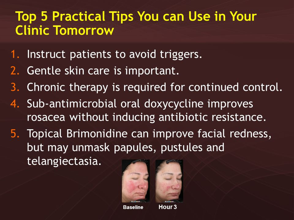 Top 5 Practical Tips You can Use in Your Clinic Tomorrow