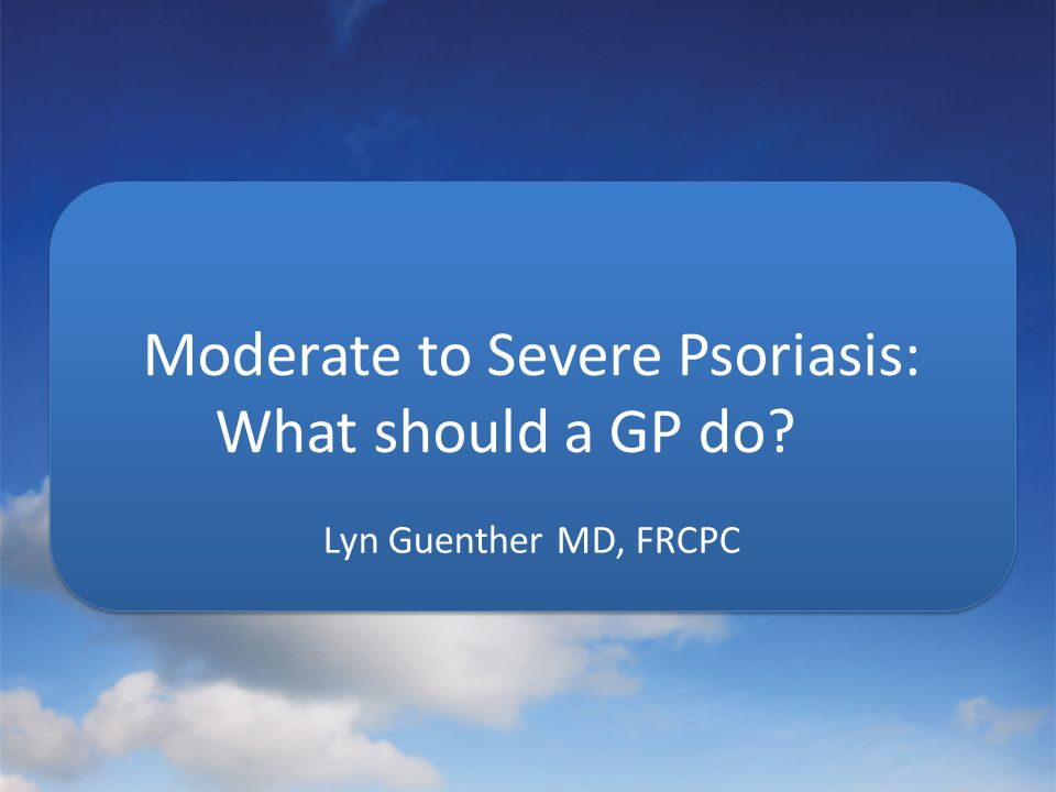 Moderate to Severe Psoriasis: What should a GP do