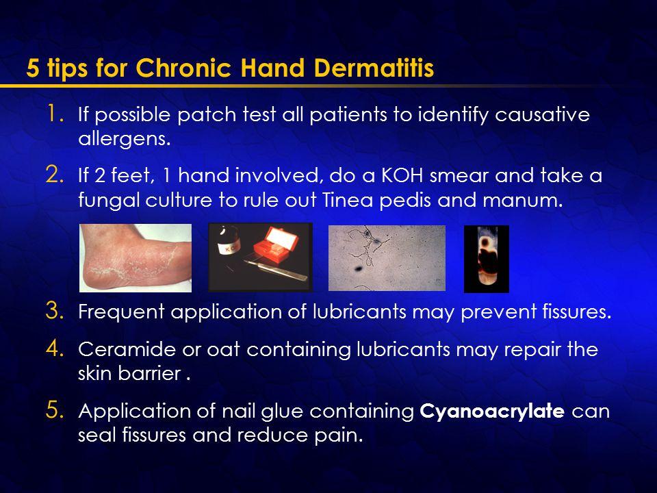 5 tips for Chronic Hand Dermatitis