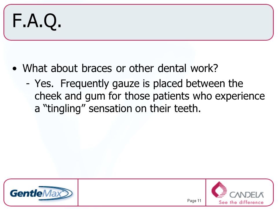 F.A.Q. What about braces or other dental work
