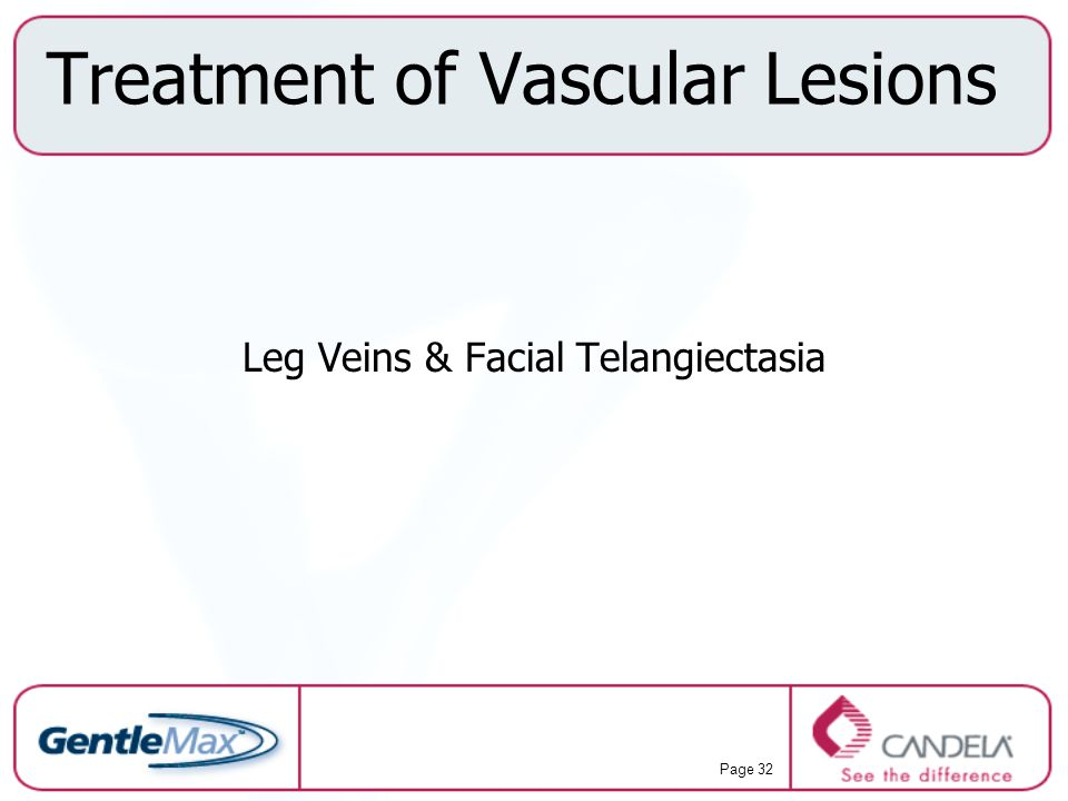 Treatment of Vascular Lesions