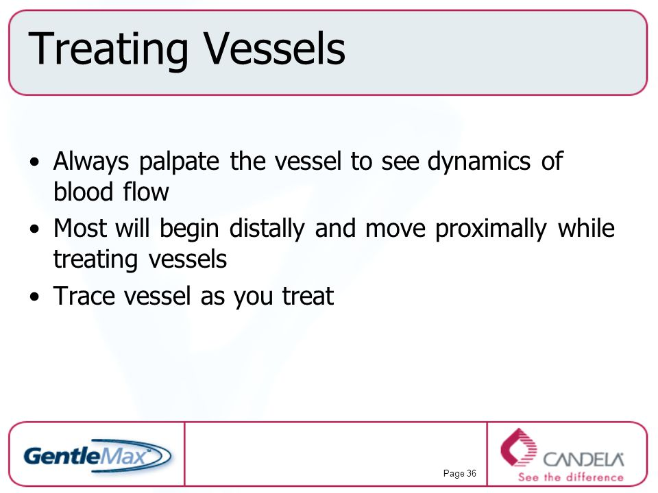 Treating Vessels Always palpate the vessel to see dynamics of blood flow. Most will begin distally and move proximally while treating vessels.