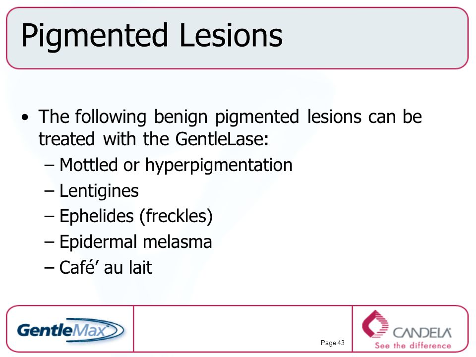 Pigmented Lesions The following benign pigmented lesions can be treated with the GentleLase: Mottled or hyperpigmentation.