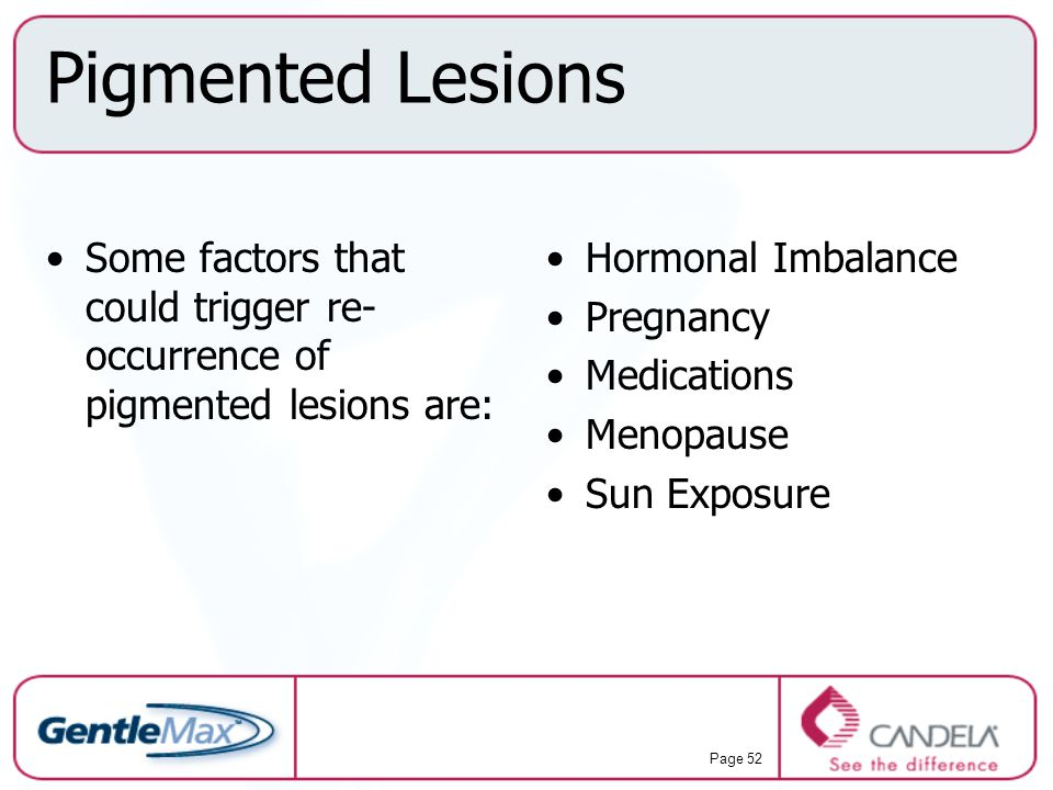 Pigmented Lesions Some factors that could trigger re-occurrence of pigmented lesions are: Hormonal Imbalance.