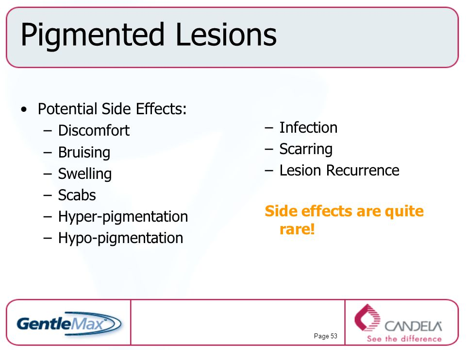Pigmented Lesions Potential Side Effects: Infection Discomfort