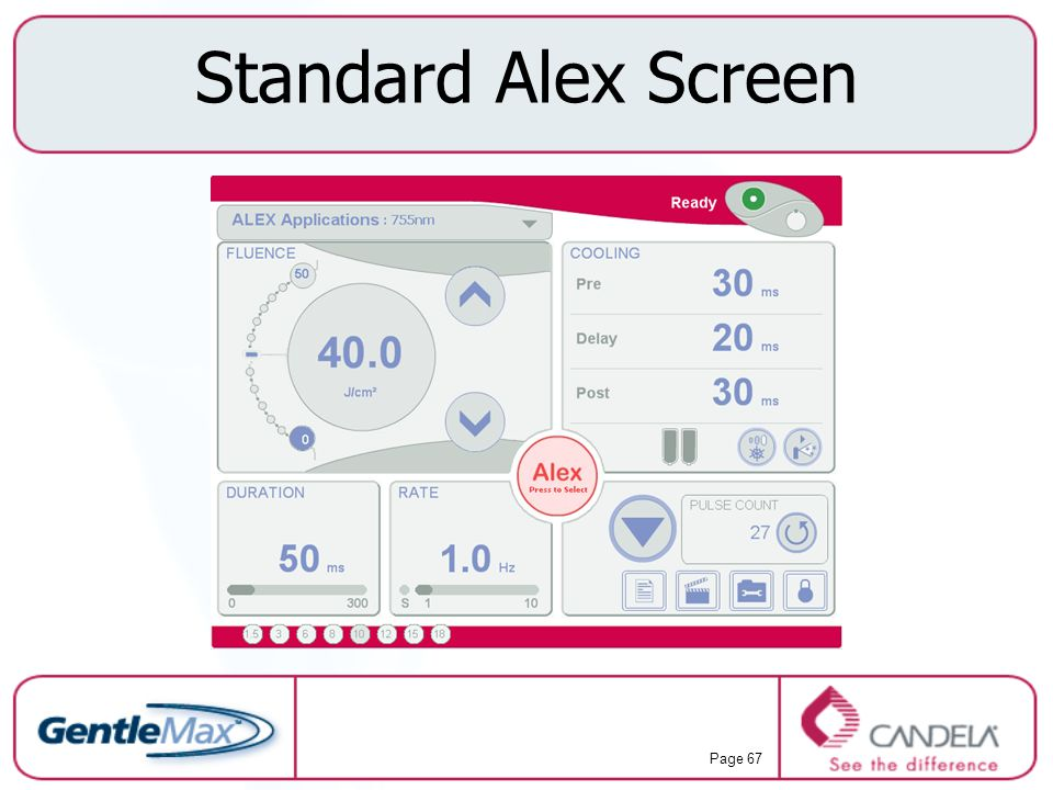 Standard Alex Screen