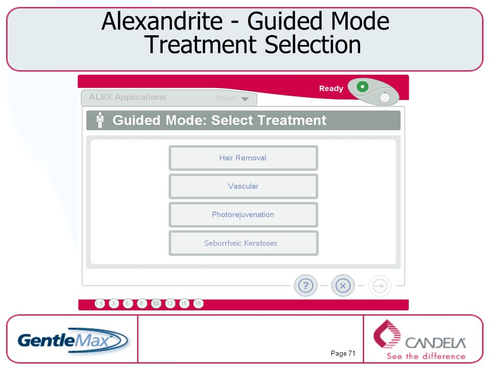 Alexandrite - Guided Mode Treatment Selection