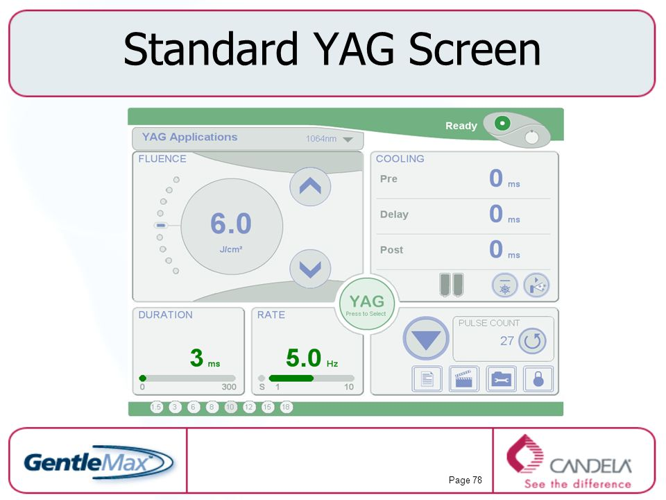 Standard YAG Screen