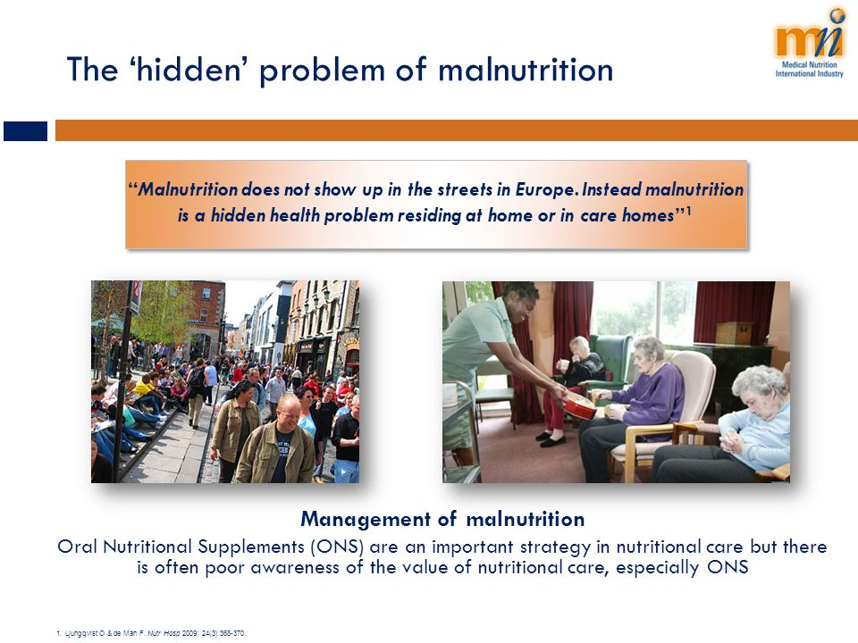 The 'hidden' problem of malnutrition