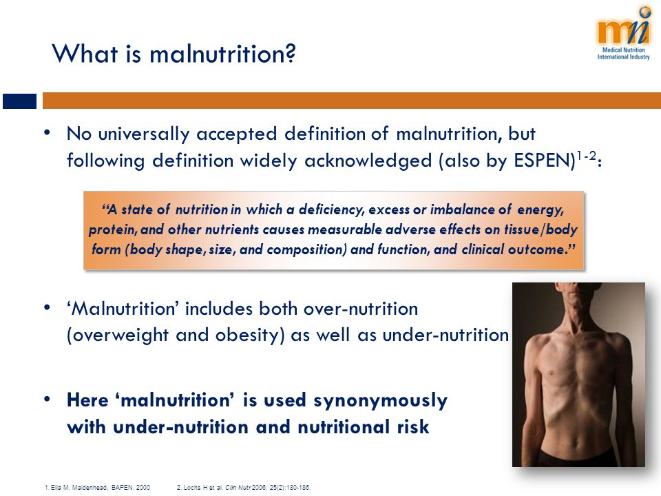 What is malnutrition No universally accepted definition of malnutrition, but following definition widely acknowledged (also by ESPEN)1-2: